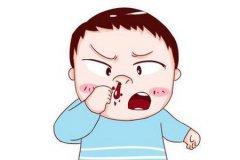 鼻出血患者可能会出现哪些症状?